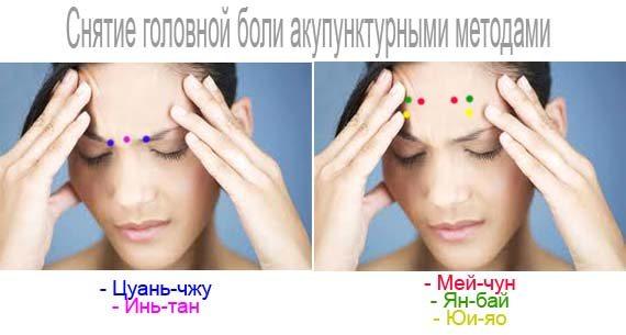 Снятие головной боли акупунктурными методами