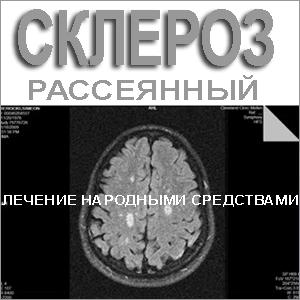 Томография мозга - склероз