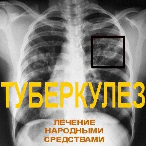 Рентген - туберкулез