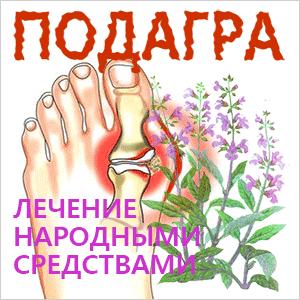 подагра-лечение