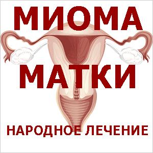 миома матки стадии
