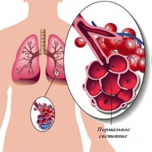 Болезнь пневмония легких