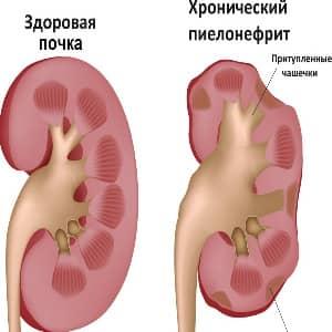 Пиелонефрит причины заболевания