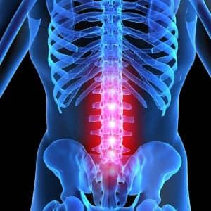 Признаки и симптомы остеохондроза