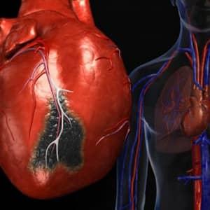 Описание и причины инфаркта
