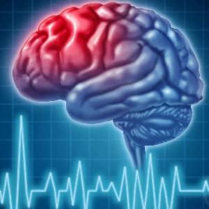 Виды инсульта головного мозга