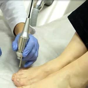 Грибок ногтей лечение лазером