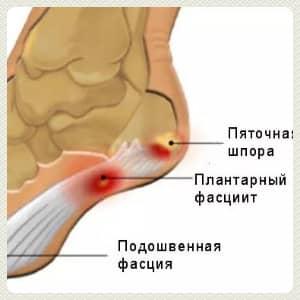 Пяточная шпора лечение