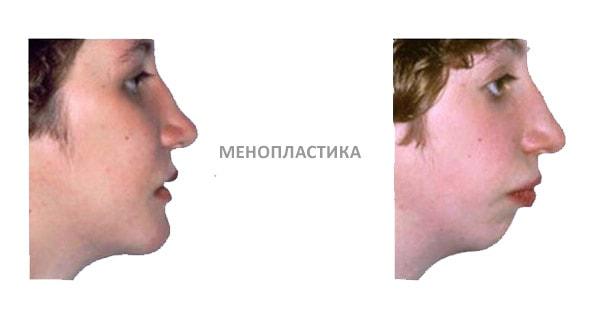 Результат менопластики