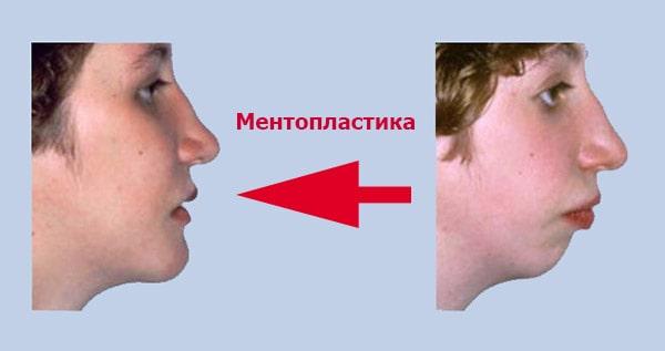 Ментопластика