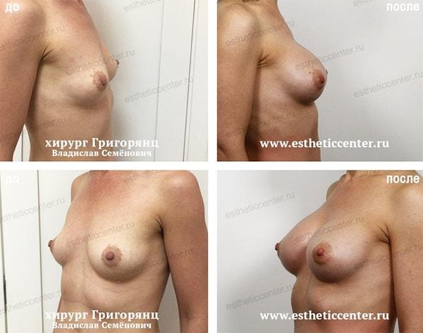 стоимость увеличения груди